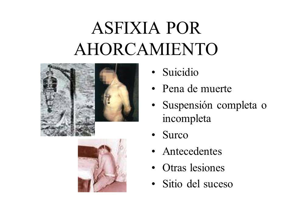 ASFIXIA POR AHORCAMIENTO