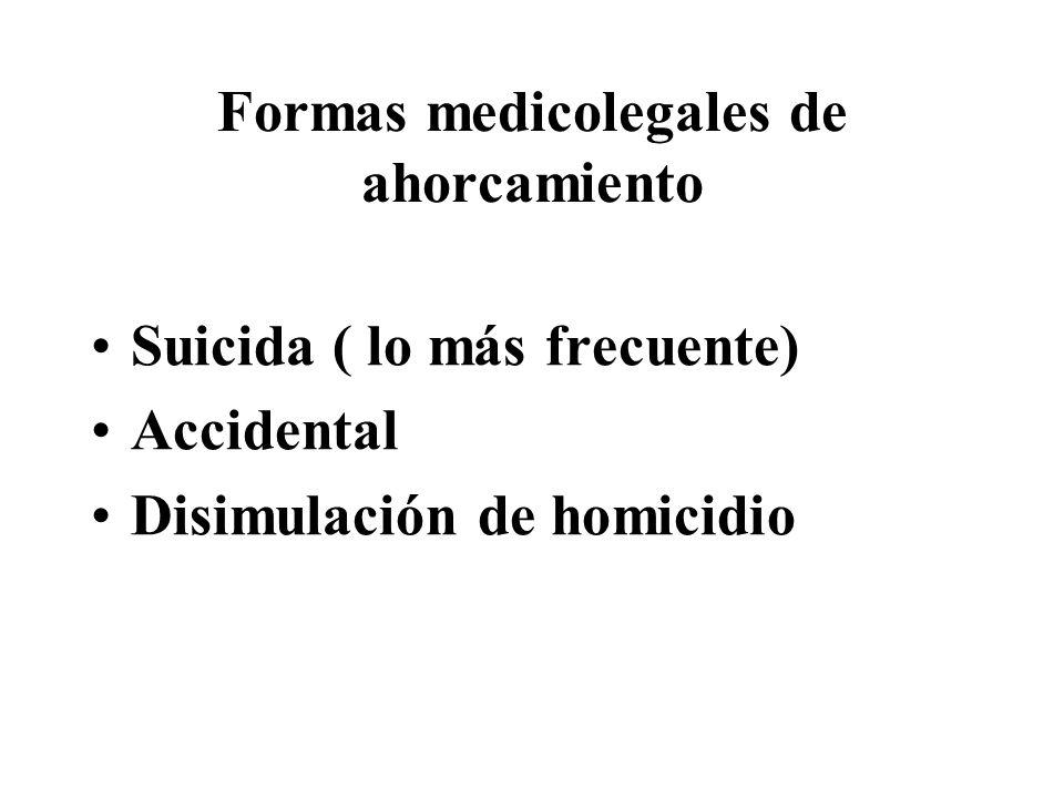 Formas medicolegales de ahorcamiento