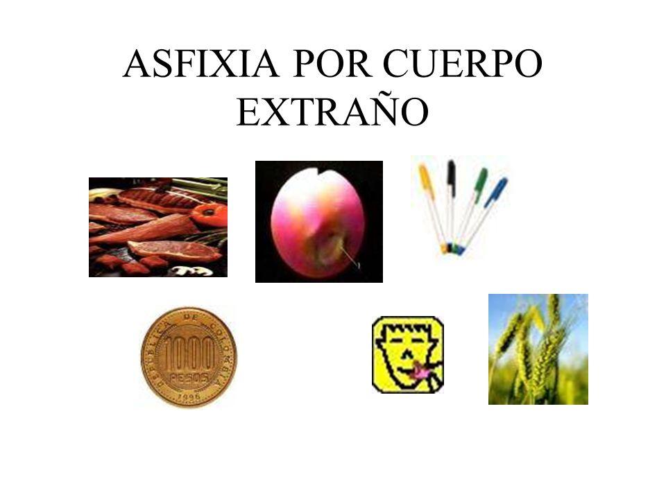 ASFIXIA POR CUERPO EXTRAÑO