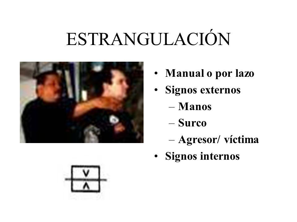 ESTRANGULACIÓN Manual o por lazo Signos externos Manos Surco