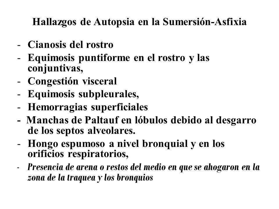 Hallazgos de Autopsia en la Sumersión-Asfixia