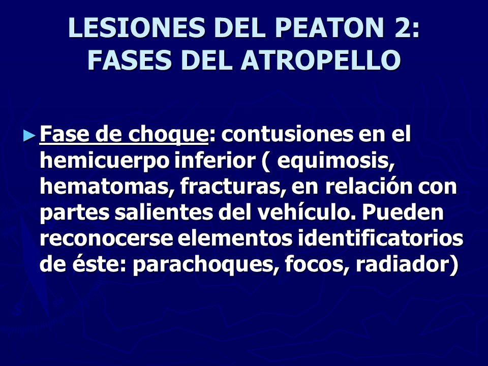 LESIONES DEL PEATON 2: FASES DEL ATROPELLO