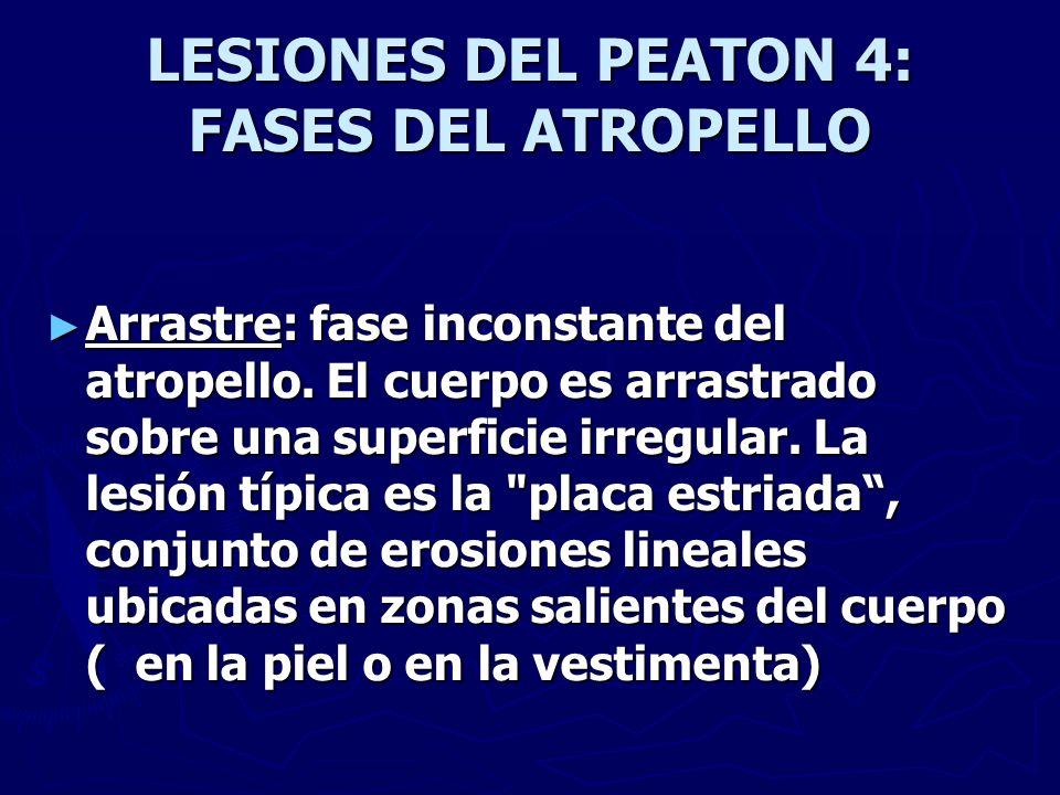 LESIONES DEL PEATON 4: FASES DEL ATROPELLO