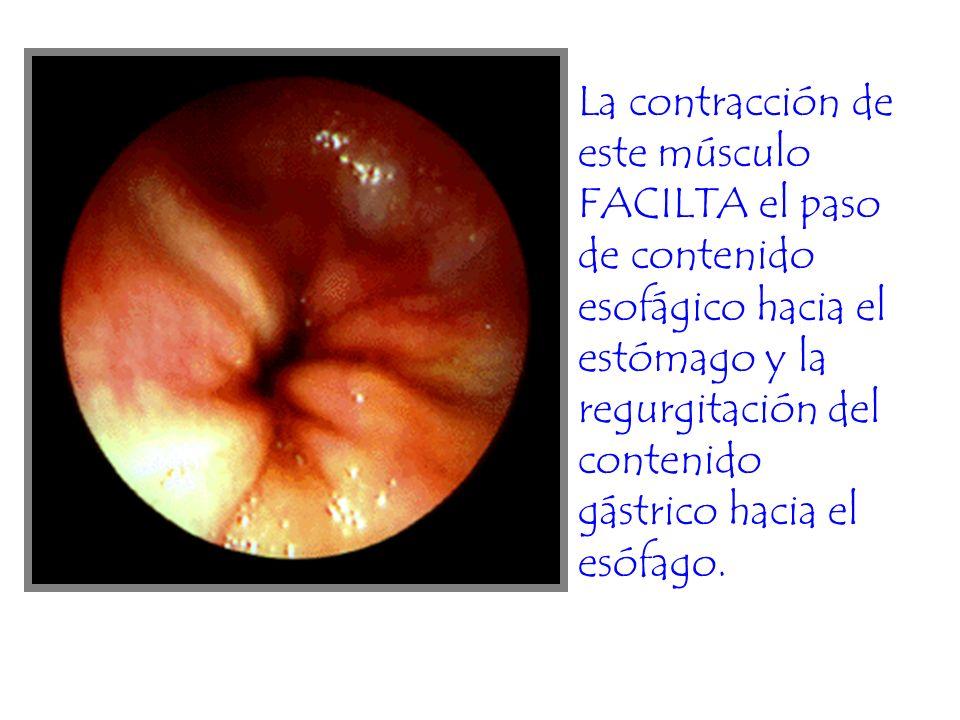 La contracción de este músculo FACILTA el paso de contenido esofágico hacia el estómago y la regurgitación del contenido gástrico hacia el esófago.