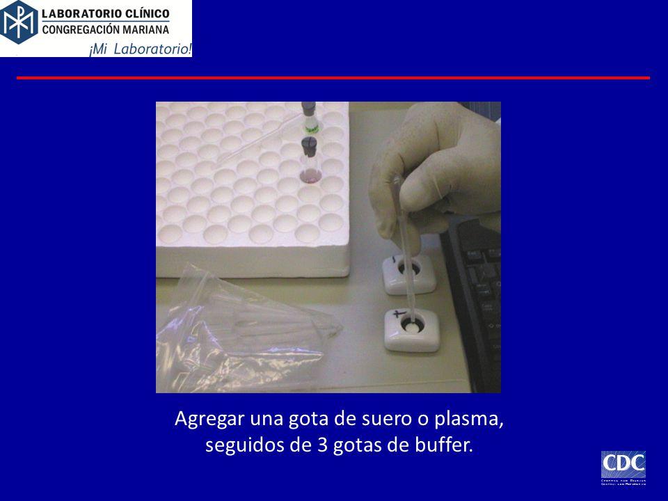 Agregar una gota de suero o plasma, seguidos de 3 gotas de buffer.
