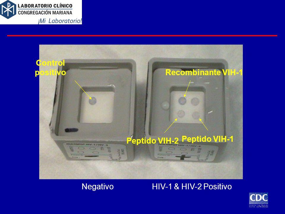 Control positivo Recombinante VIH-1 Peptido VIH-1 Peptido VIH-2 Negativo HIV-1 & HIV-2 Positivo