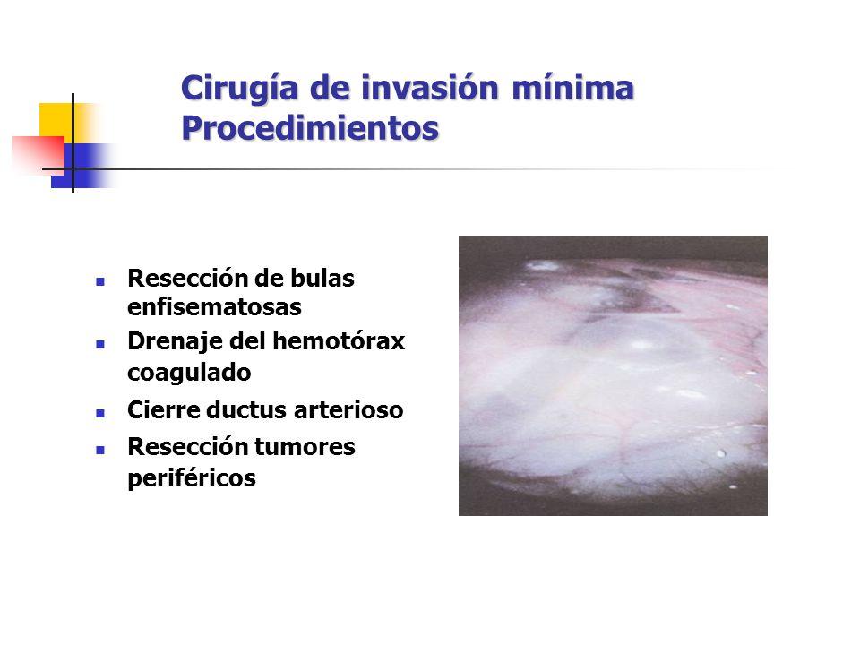 Cirugía de invasión mínima Procedimientos