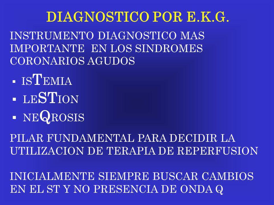 DIAGNOSTICO POR E.K.G. INSTRUMENTO DIAGNOSTICO MAS