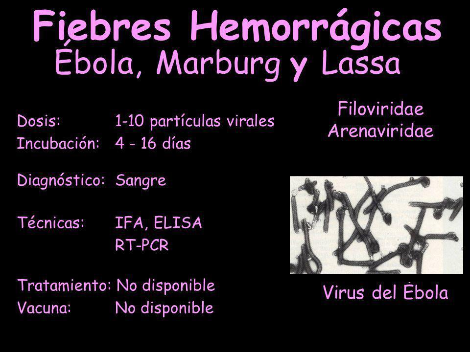 Fiebres Hemorrágicas Ébola, Marburg y Lassa Filoviridae Arenaviridae