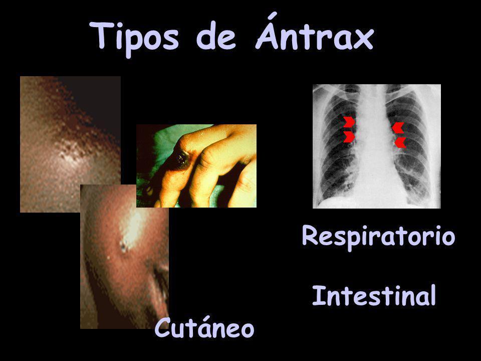 Tipos de Ántrax Respiratorio Intestinal Cutáneo