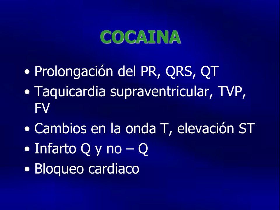 COCAINA Prolongación del PR, QRS, QT
