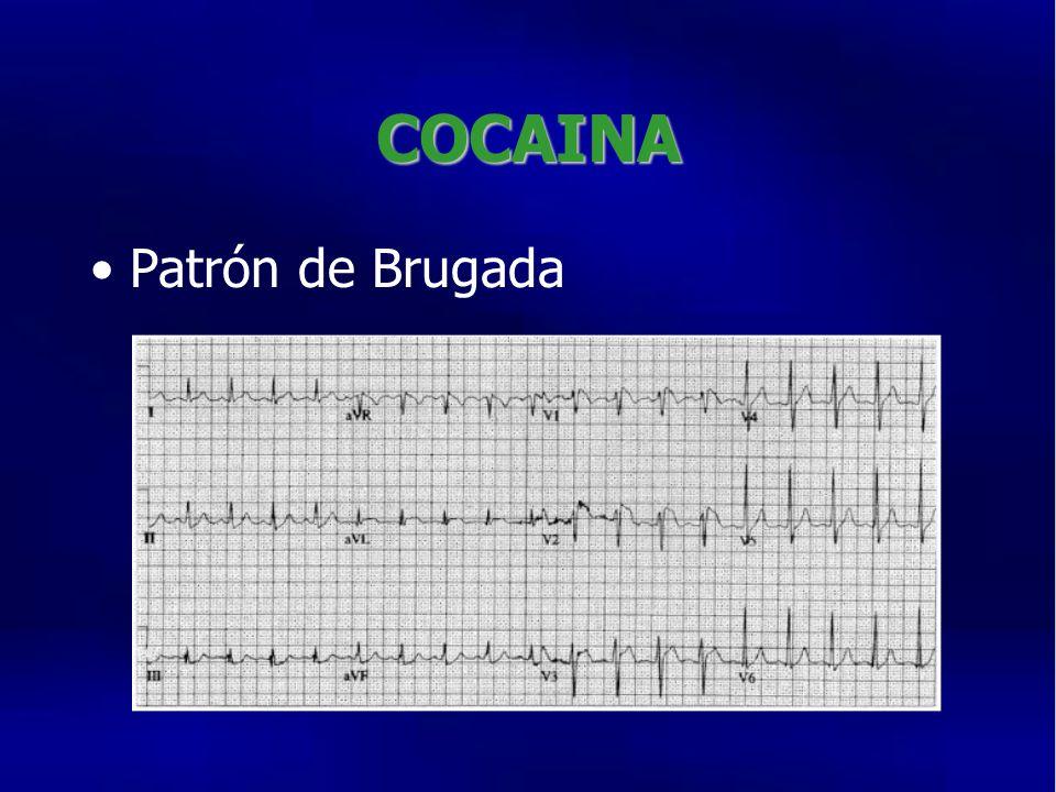 COCAINA Patrón de Brugada
