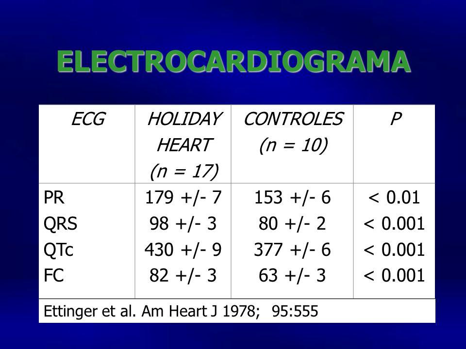 ELECTROCARDIOGRAMA ECG HOLIDAY HEART (n = 17) CONTROLES (n = 10) P PR