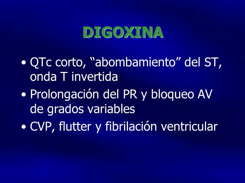 DIGOXINA QTc corto, abombamiento del ST, onda T invertida
