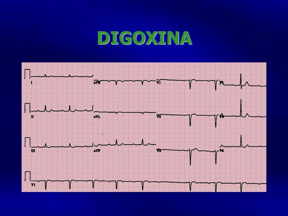 DIGOXINA Electro 33o con PR que se va prolongando, bloqueo AV d e segundo grado QT corto, abombamiento del ST en.