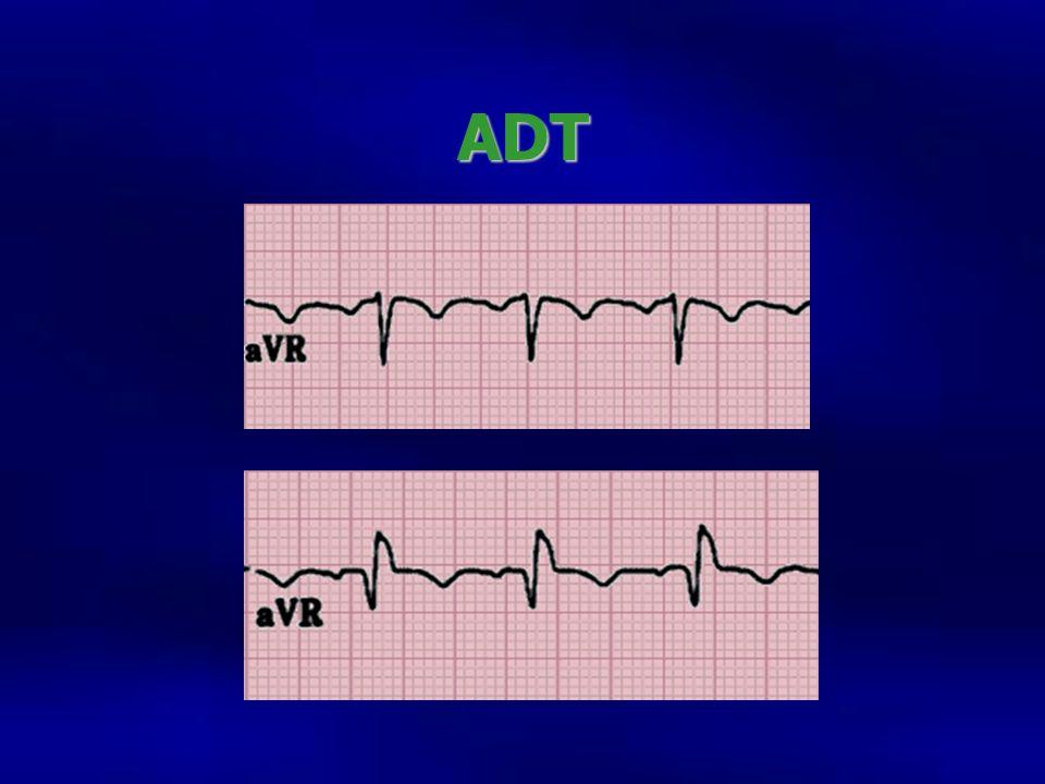 ADT Avr normsl y de ADT