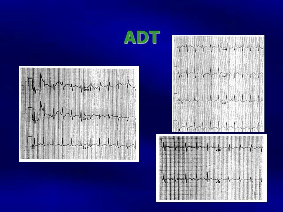 ADT R de avr prominrnete, mejora el qrs, el qt y la taquicardia