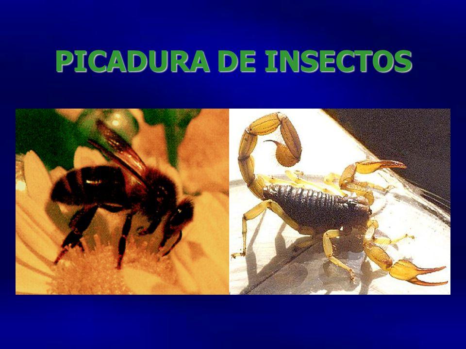 PICADURA DE INSECTOS
