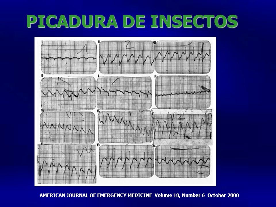 PICADURA DE INSECTOS Depresión del ST en casi todas las derivaciones