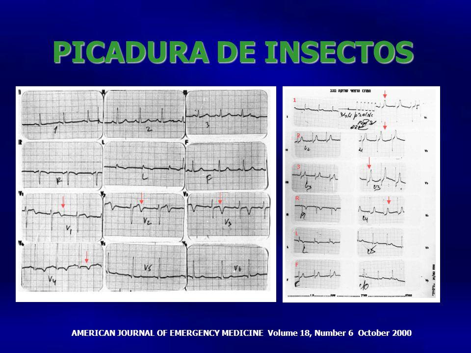 PICADURA DE INSECTOS 1. 2. 3. R. 1inversión de la T de V1 a V4 2. Ondas t hiperagudas. L.