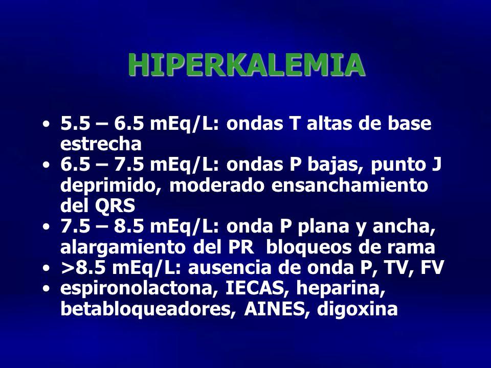 HIPERKALEMIA 5.5 – 6.5 mEq/L: ondas T altas de base estrecha