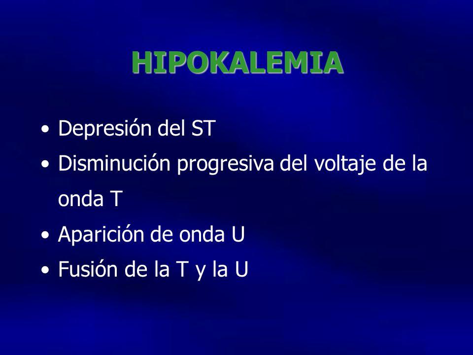 HIPOKALEMIA Depresión del ST