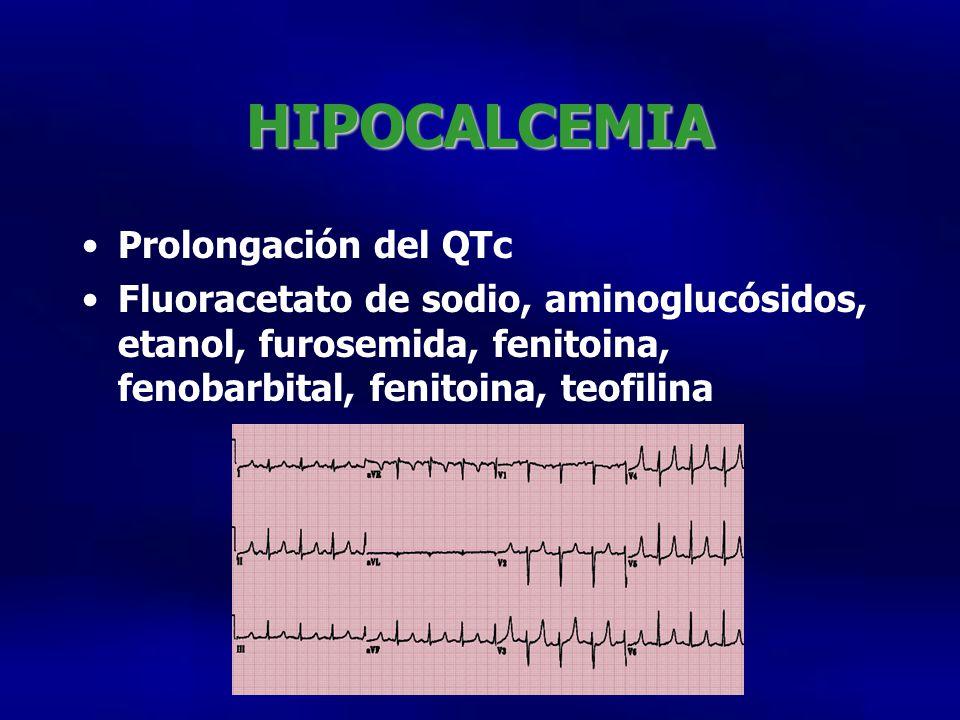 HIPOCALCEMIA Prolongación del QTc