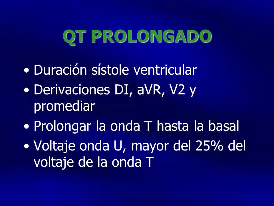 QT PROLONGADO Duración sístole ventricular