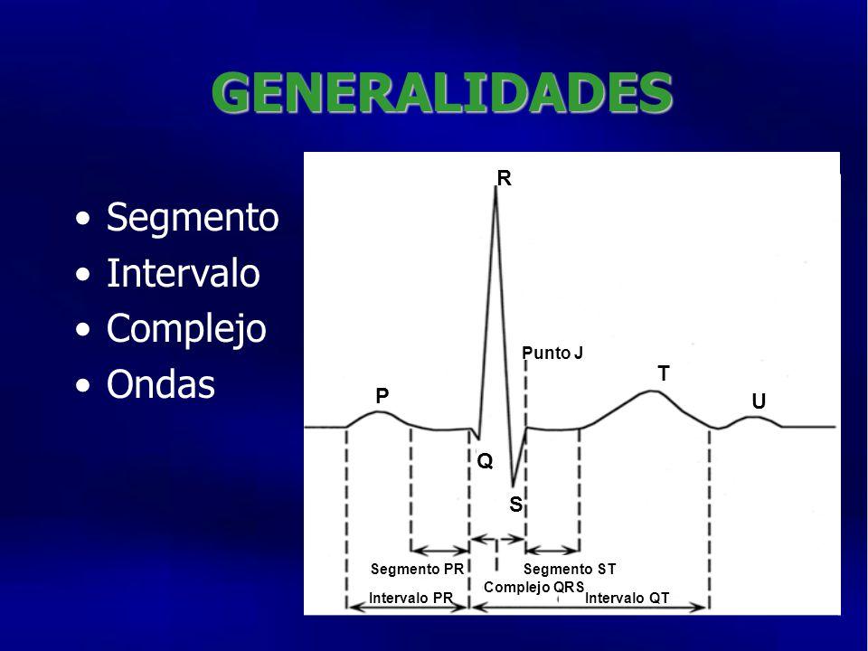 GENERALIDADES Segmento Intervalo Complejo Ondas R T P U Q S Punto J