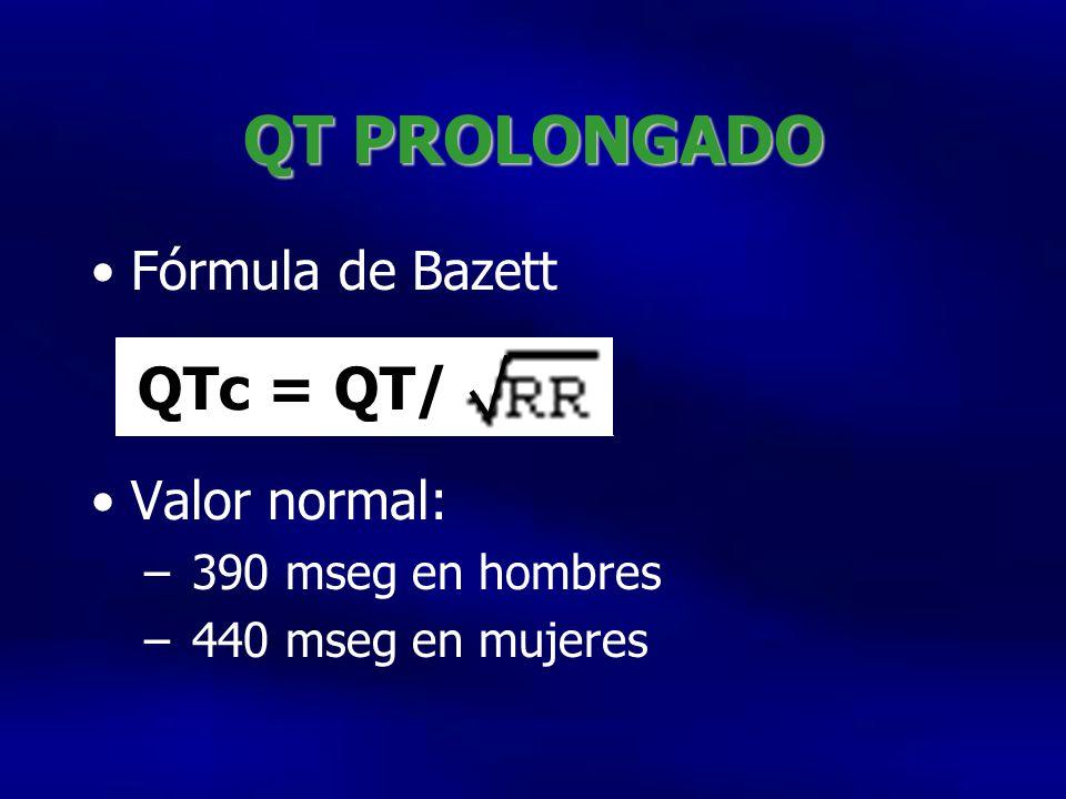 QT PROLONGADO QTc = QT/ Fórmula de Bazett Valor normal: