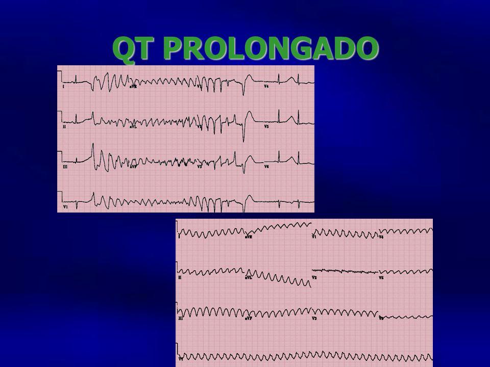 QT PROLONGADO