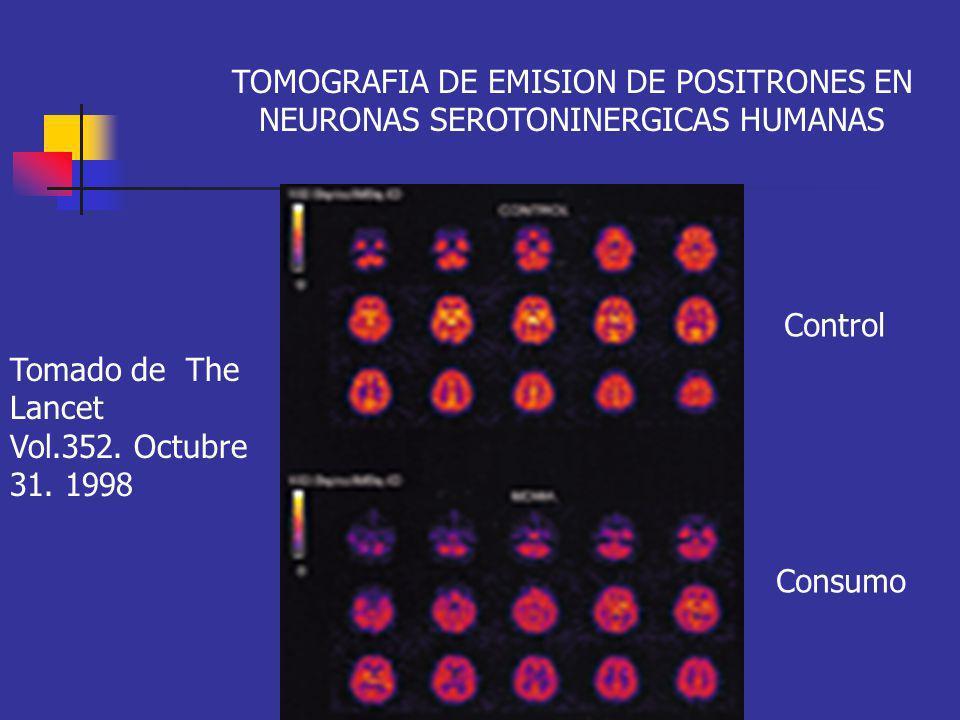 TOMOGRAFIA DE EMISION DE POSITRONES EN NEURONAS SEROTONINERGICAS HUMANAS