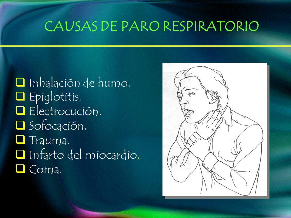 CAUSAS DE PARO RESPIRATORIO