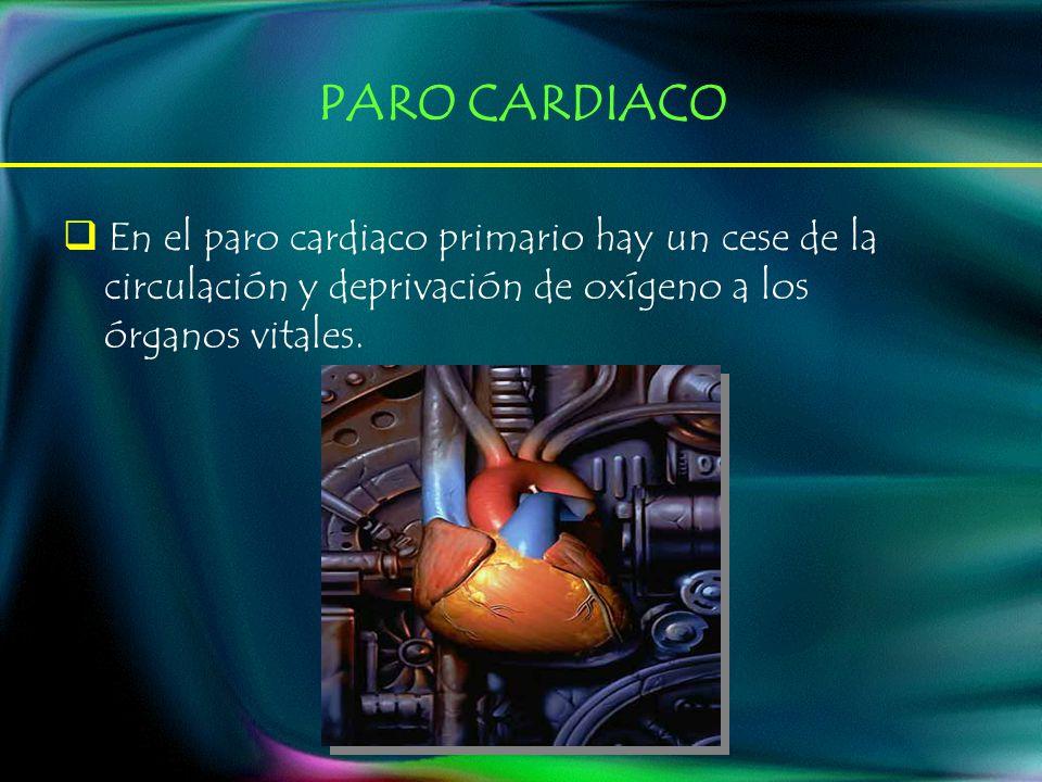 PARO CARDIACO En el paro cardiaco primario hay un cese de la