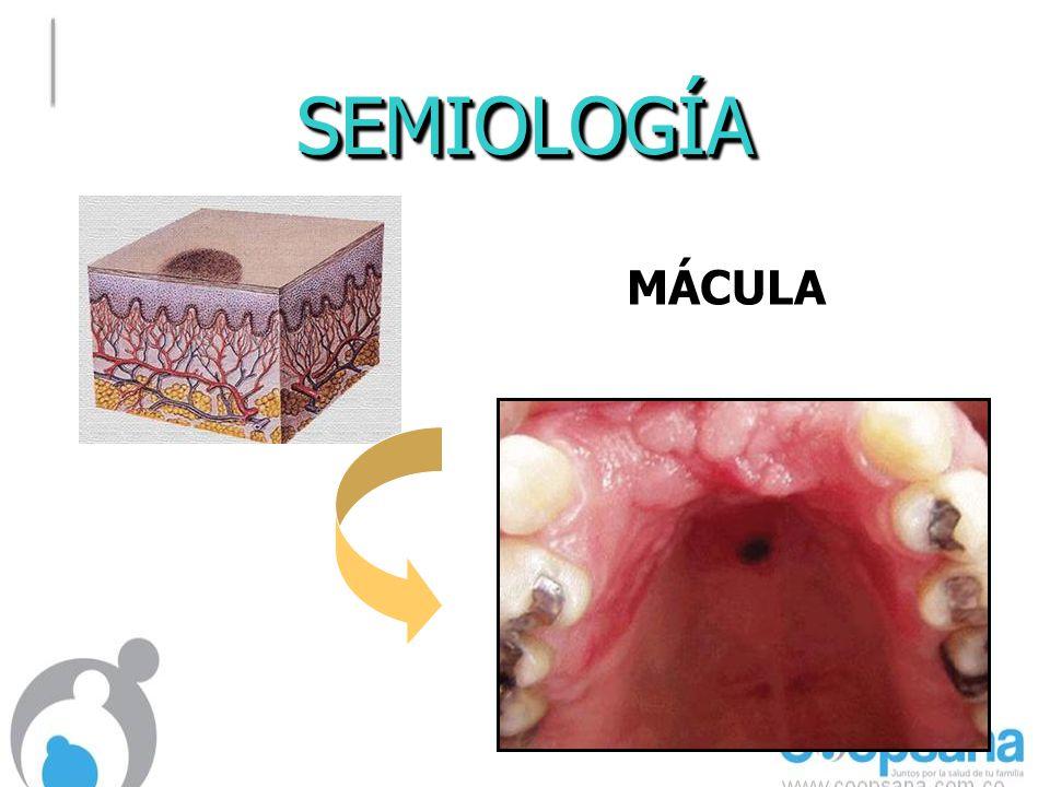 SEMIOLOGÍA MÁCULA