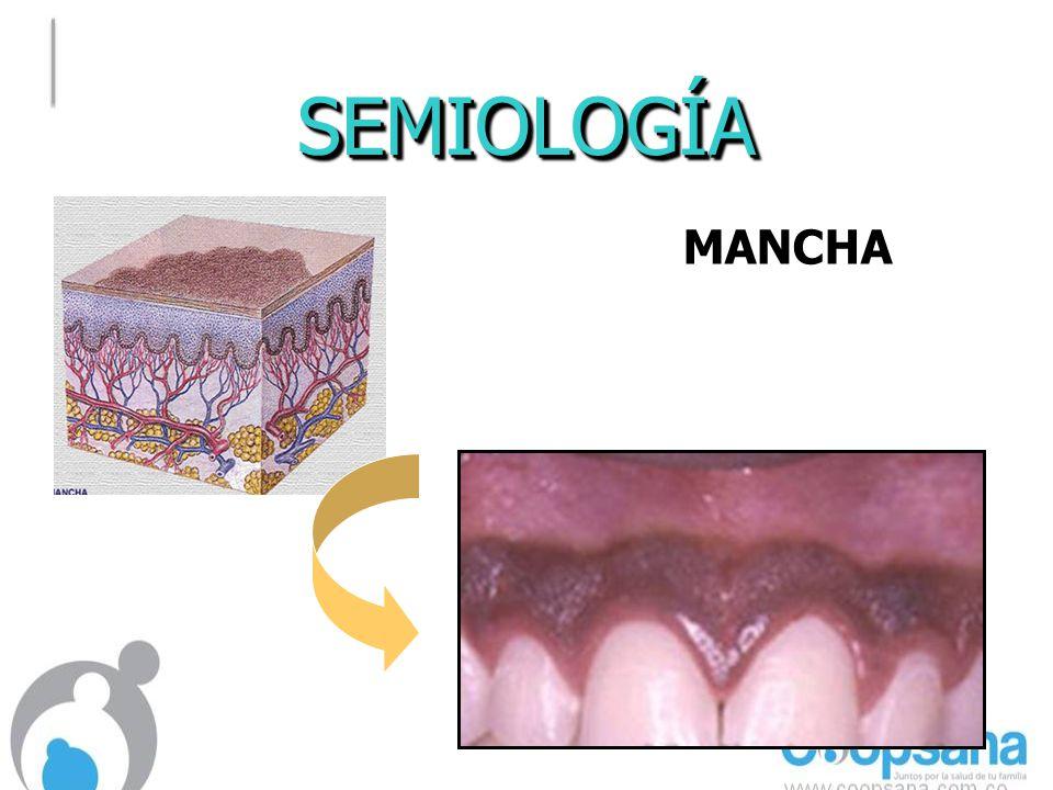 SEMIOLOGÍA MANCHA