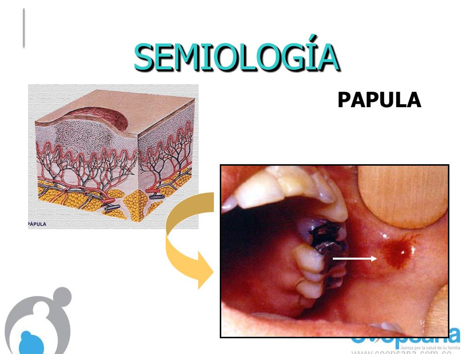 SEMIOLOGÍA PAPULA
