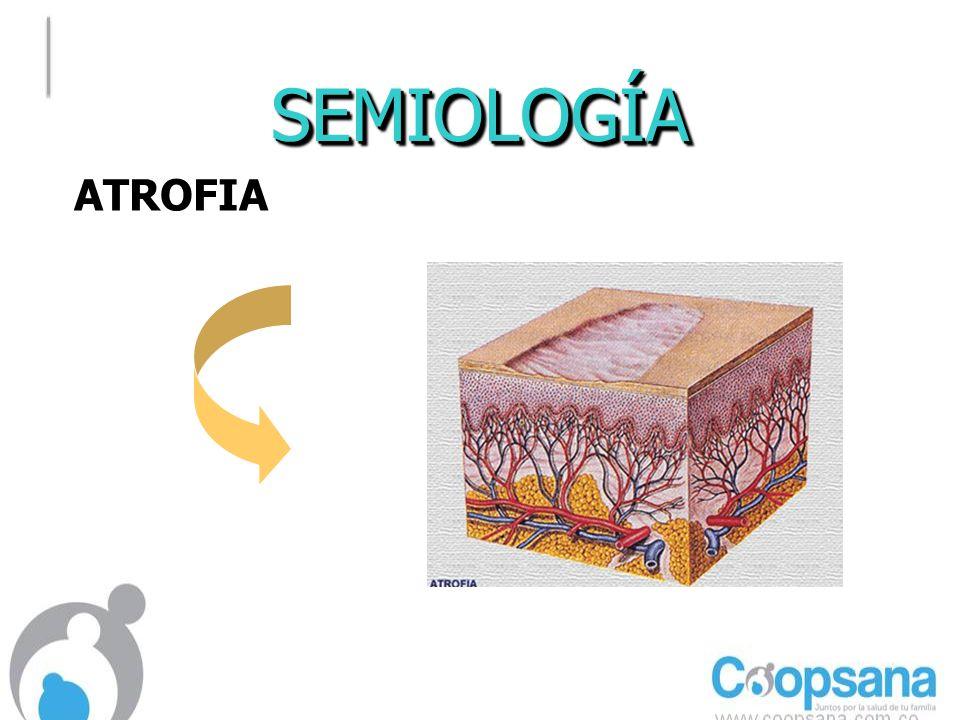 SEMIOLOGÍA ATROFIA