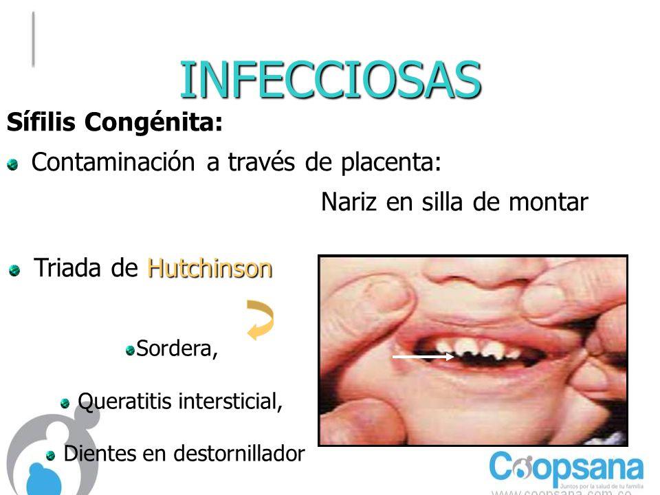 INFECCIOSAS Sífilis Congénita: Contaminación a través de placenta: