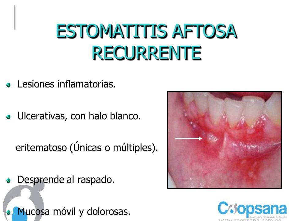 ESTOMATITIS AFTOSA RECURRENTE Lesiones inflamatorias.