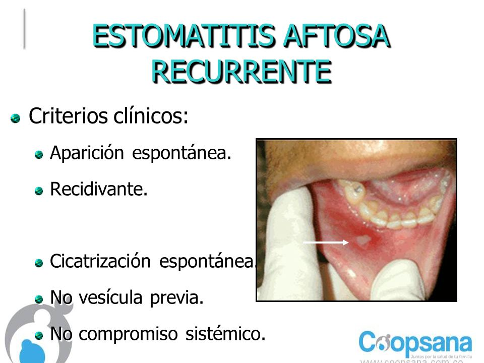 ESTOMATITIS AFTOSA RECURRENTE Criterios clínicos: