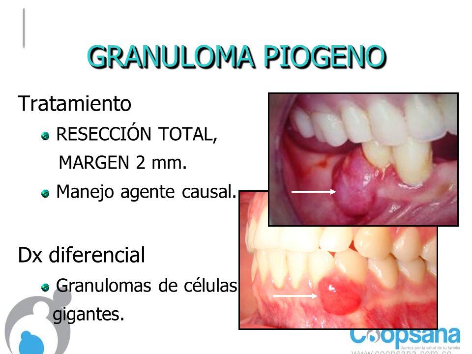 GRANULOMA PIOGENO Tratamiento Dx diferencial RESECCIÓN TOTAL,
