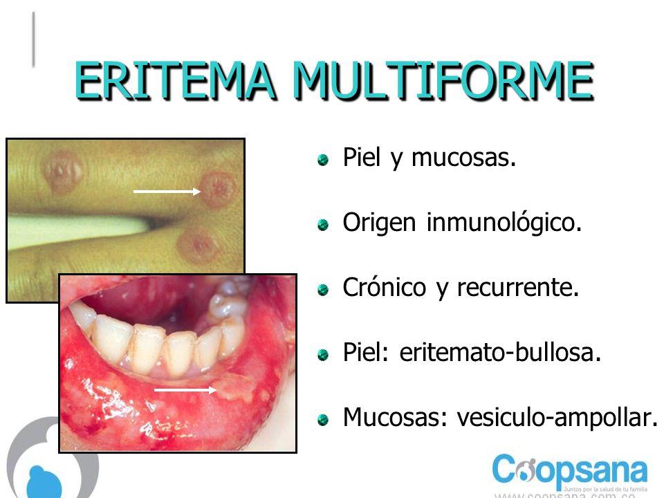 ERITEMA MULTIFORME Piel y mucosas. Origen inmunológico.