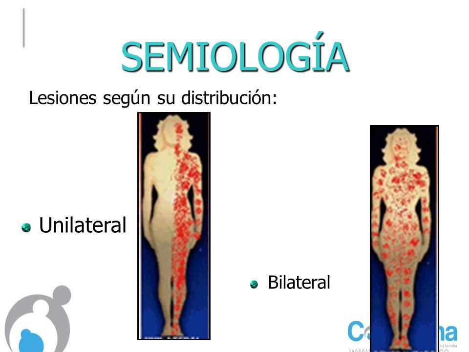 SEMIOLOGÍA Lesiones según su distribución: Unilateral Bilateral