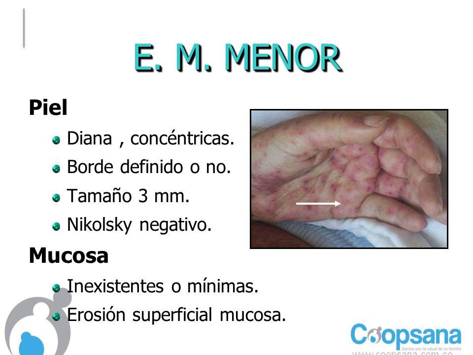 E. M. MENOR Piel Mucosa Diana , concéntricas. Borde definido o no.