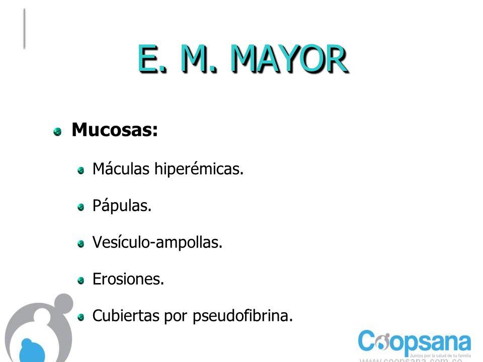 E. M. MAYOR Mucosas: Máculas hiperémicas. Pápulas. Vesículo-ampollas.