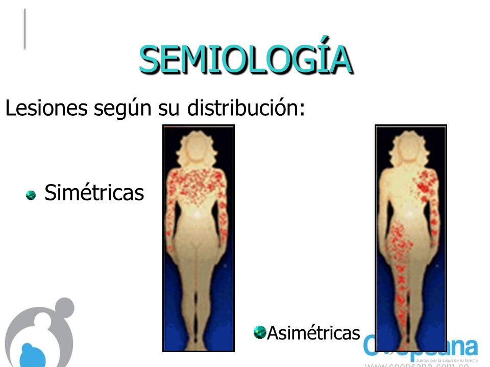 SEMIOLOGÍA Lesiones según su distribución: Simétricas Asimétricas