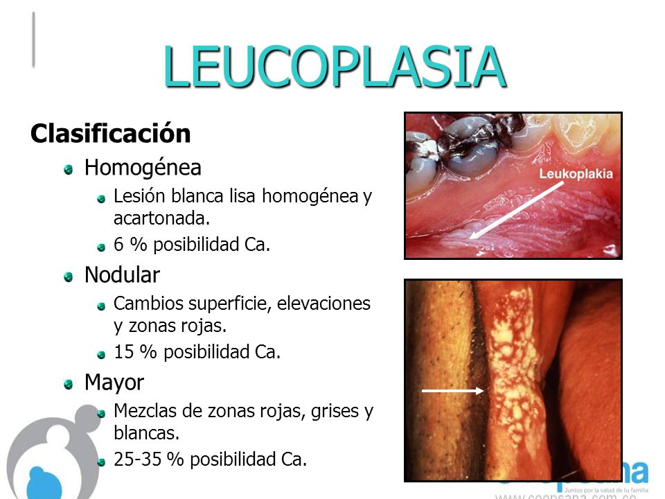 LEUCOPLASIA Clasificación Homogénea Nodular Mayor