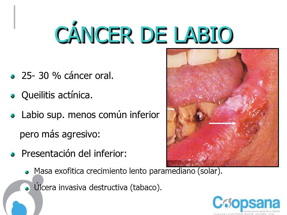 CÁNCER DE LABIO 25- 30 % cáncer oral. Queilitis actínica.