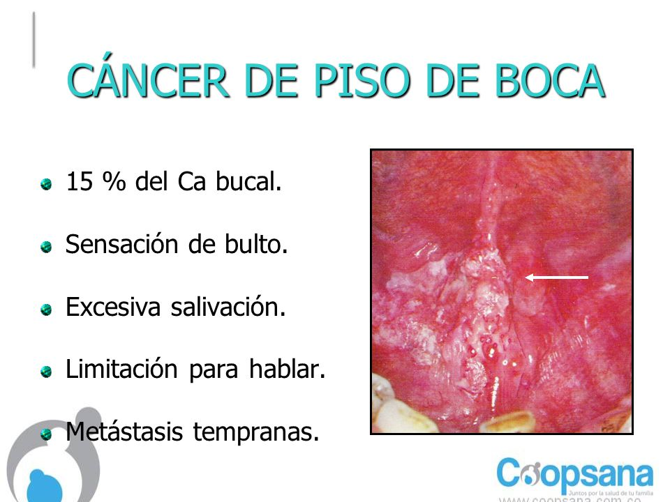 CÁNCER DE PISO DE BOCA 15 % del Ca bucal. Sensación de bulto.